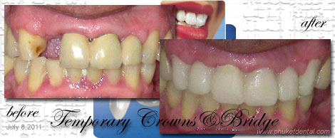 Temporary Crowns&Bridges at Phuket Dental Clinic,Thailand